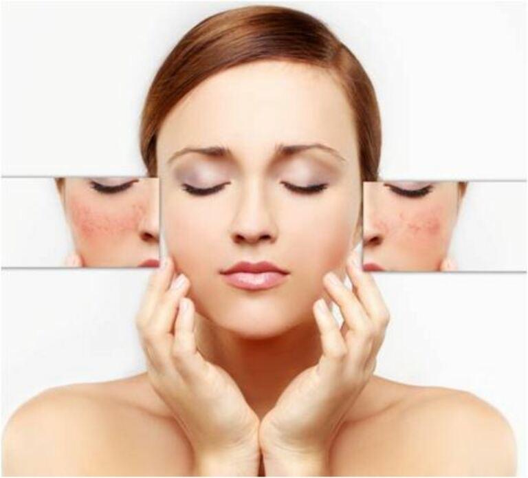 Các phương pháp chữa nám da hoặc tàn nhang từ thiên nhiên thường chỉ hiệu quả trong những trường hợp nhẹ.