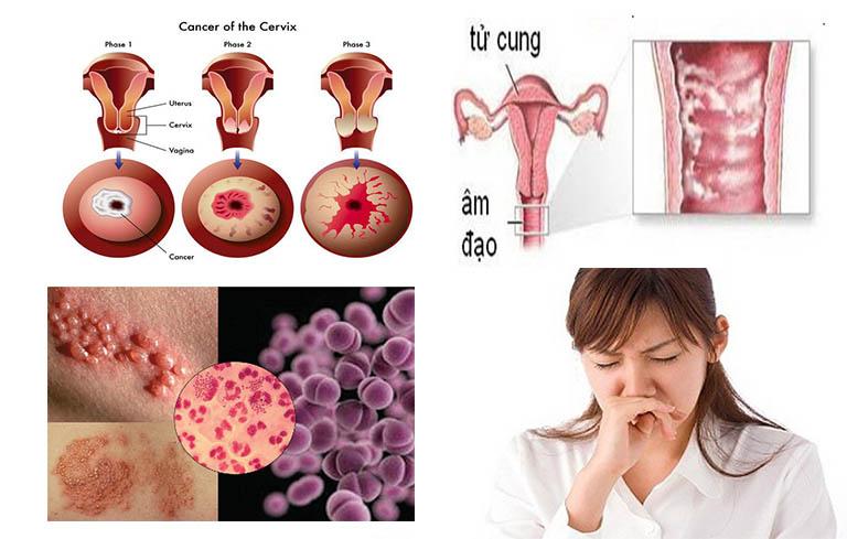Kinh nguyệt có mùi hôi do vi khuẩn viêm nhiễm, khuẩn bệnh lây qua đường tình dục gây ra