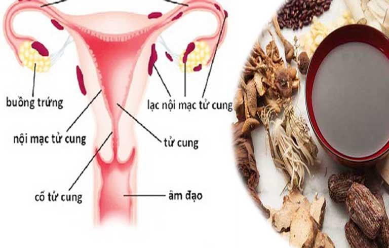 Sử dụng Đông y chữa lạc nội mạc tử cung rất an toàn cho sức khỏe và mang đến hiệu quả lâu dài, không tác dụng phụ