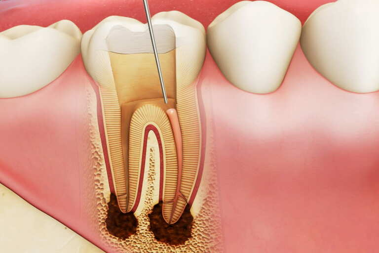Viêm tủy răng không thể tự phục hồi. Giải pháp điều trị phổ biến là lấy tủy đã bị viêm nhiễm ra ngoài rồi hàn kín tủy.