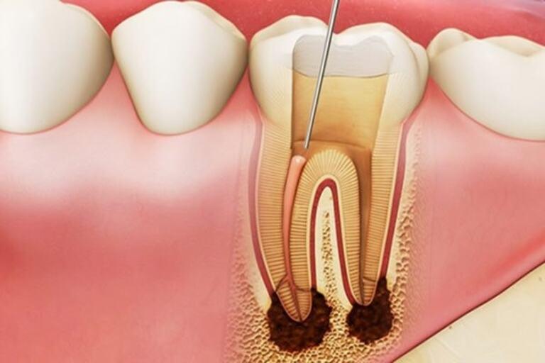 Lấy tủy giúp răng không còn ê buốt nhưng thường đi kèm nhiều hệ lụy nếu không chú ý cách chăm sóc miệng sau điều trị.