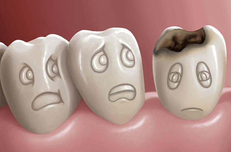Khi nào cần lấy tủy răng?