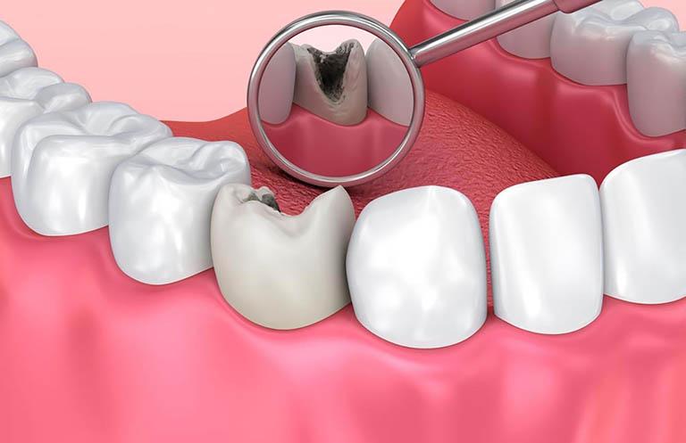 Răng sau khi lấy tủy