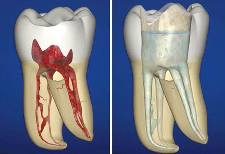 Lấy tủy răng có đau không? Chi phí bao nhiêu tiền?