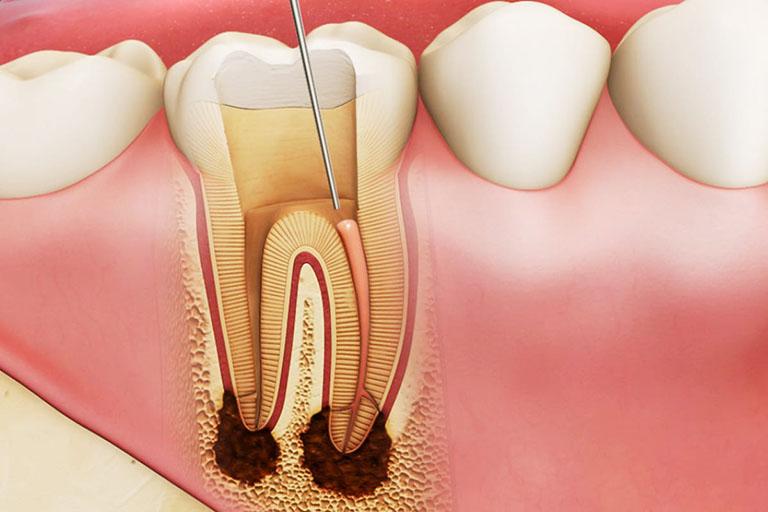 Tủy răng còn sót lại bên trong là nguyên nhân dẫn đến đau nhức sau khi lấy tủy khá phổ biến