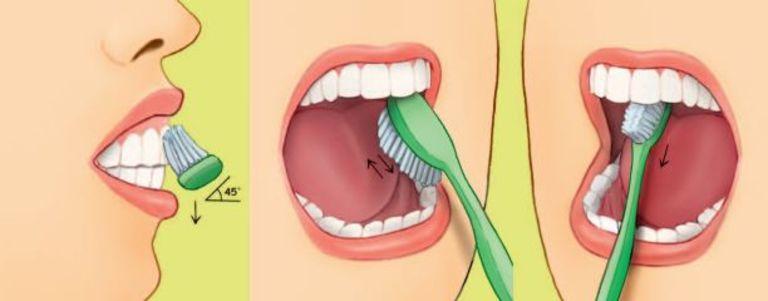 Vệ sinh răng miệng đúng cách là cách phòng và hỗ trợ chữa đau răng cơ bản, hiệu quả và an toàn.