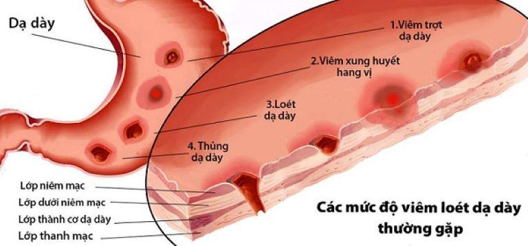 Các mức độ viêm dạ dày