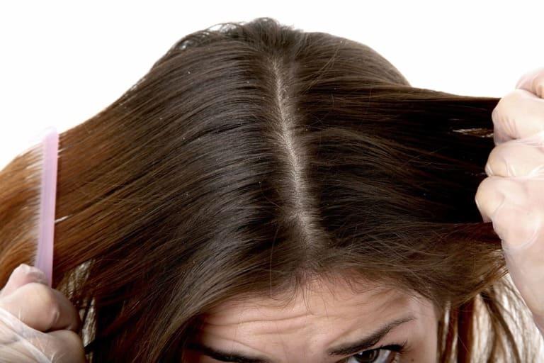 Nấm da đầu nặng ảnh hưởng đến sức khỏe như thế nào?
