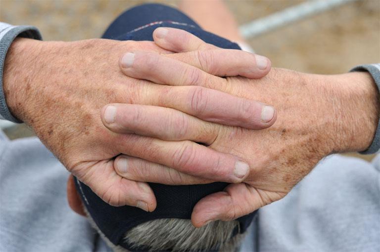 Nguyên nhân gây nên tình trạng nám da tay và phương pháp điều trị giúp xóa mờ vết thâm do nám