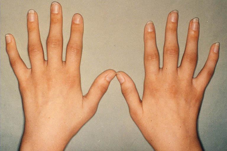 Bệnh viêm khớp dạng thấp hay viêm khớp