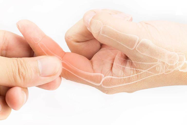 Ngủ dậy bị đau các khớp ngón tay có nguy hiểm không còn phụ thuộc vào nguyên nhân gây đau