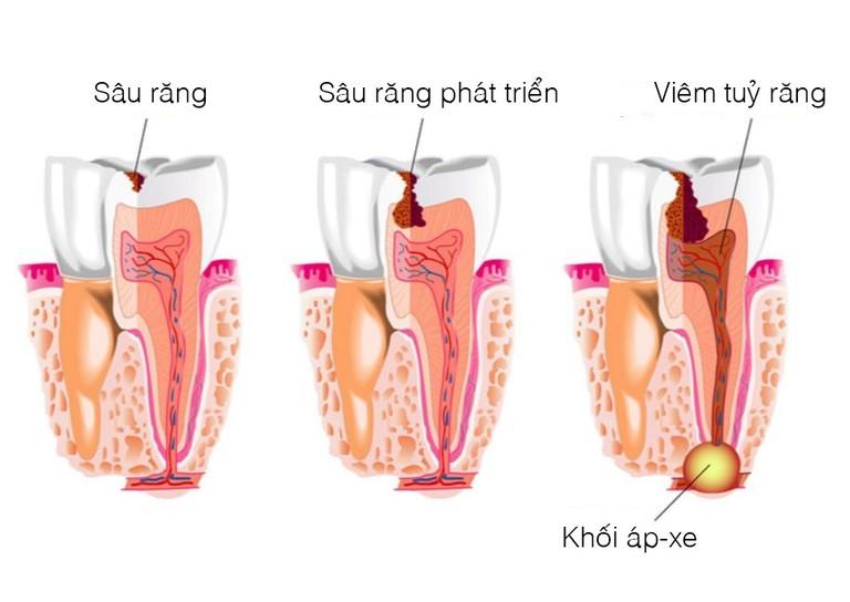 Sâu răng, viêm tủy và áp xe răng là những nguyên nhân khiến tình trạng đau nhức xương hàm trở nên nguy hiểm.
