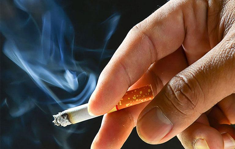Hút thuốc lá là nguyên nhân phổ biến gây bệnh viêm thanh quản mãn tính