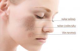 Nám da bắt nguồn từ sâu bên trong các các lớp da. Trong khi tàn nhang chỉ xuất hiện ở bề mặt.