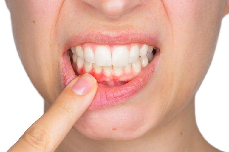 Nhổ răng bị áp xe có nguy hiểm không