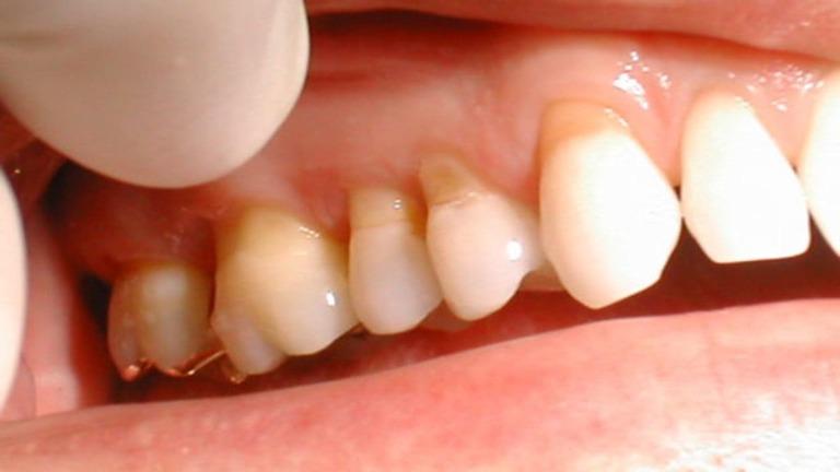 Nhổ răng bị áp xe