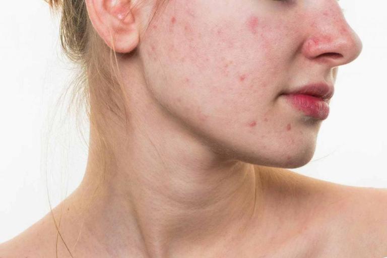 Trong giai đoạn thai kỳ, những thay đổi nội tiết tố dễ khiến da bị mụn, nám, thâm sạm hoặc rạn nứt.