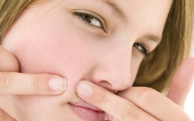 Nổi mụn trứng cá quanh miệng là tình trạng mà nhiều người gặp phải do nhiều nguyên nhân