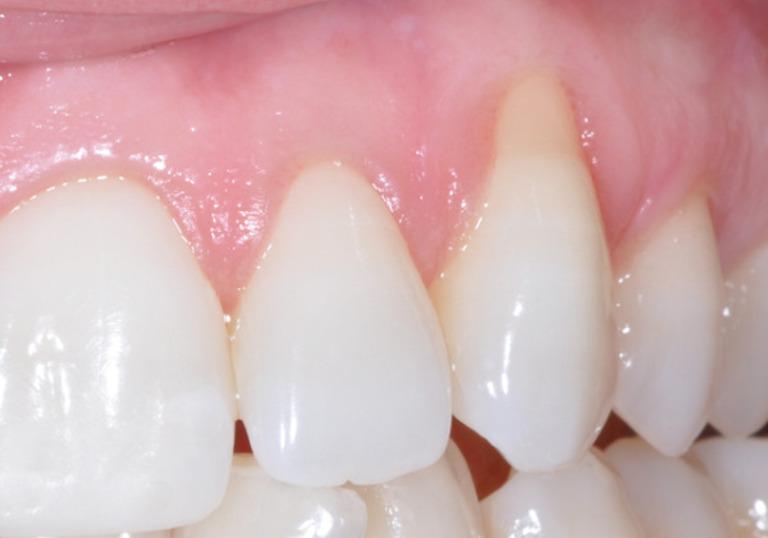 Teo nướu răng do nhiều nguyên nhân. Trong đó tác động từ bệnh lý và sinh hoạt không đúng cách chiếm đa số các trường hợp bị tình trạng này.