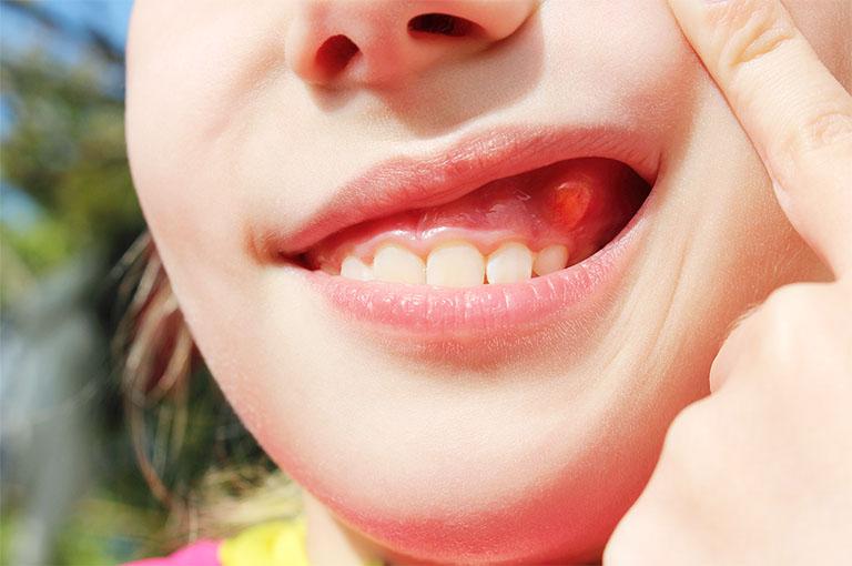 Nướu răng nổi cục thịt