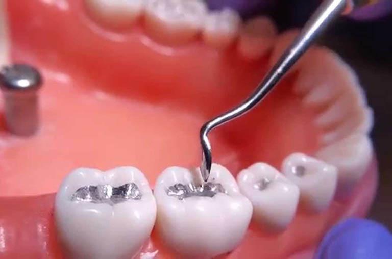 Điều trị răng cấm bị sâu bằng phương pháp trám Composite