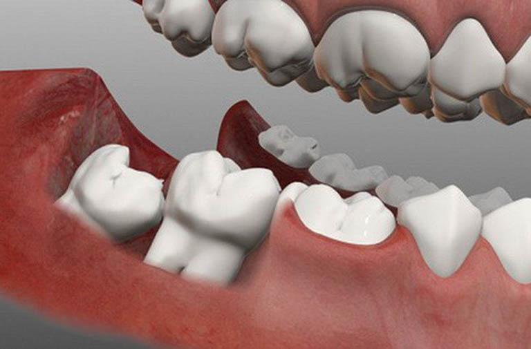 Nguyên nhân khiến răng khôn bị sâu