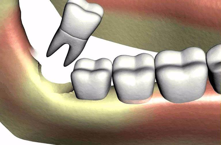 Răng khôn bị sâu có nên nhổ không?