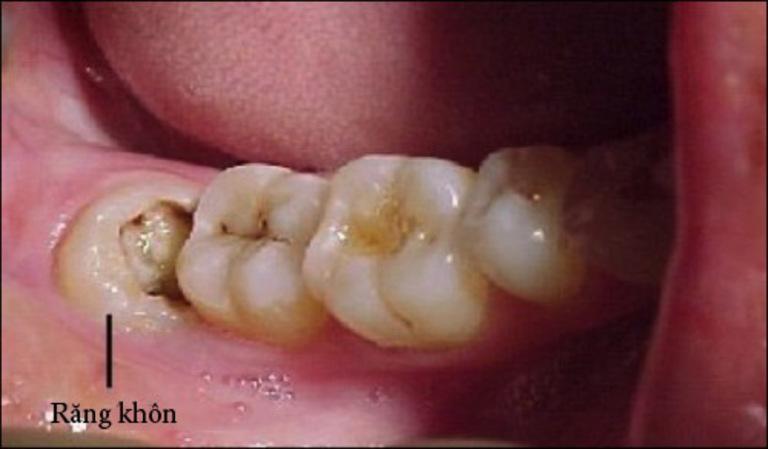 Răng khôn bị sâu ăn hoặc mọc lệch có thể nhổ bỏ mà không ảnh hưởng nhiều đến hoạt động của hàm.