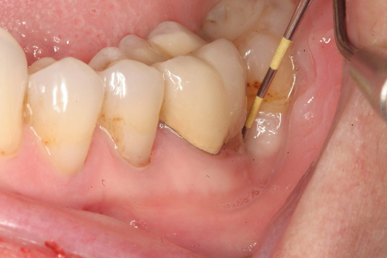 Răng không sâu nhưng đau