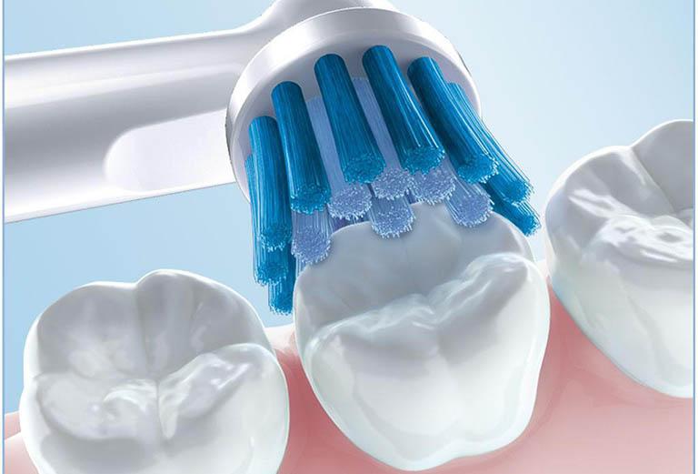 Cách điều trị răng nhạy cảm