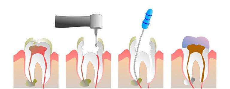 Sâu răng ăn vào tủy