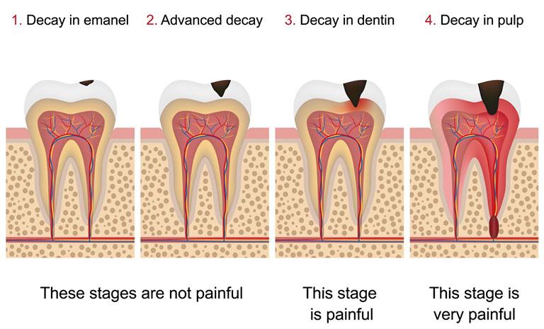 Răng sâu bị ê buốt