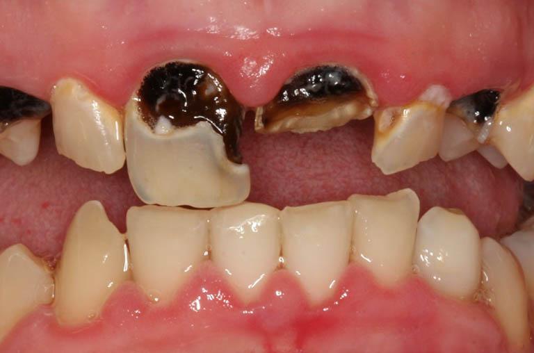 Nguyên nhân khiến răng sâu bị vỡ, bể, mẻ