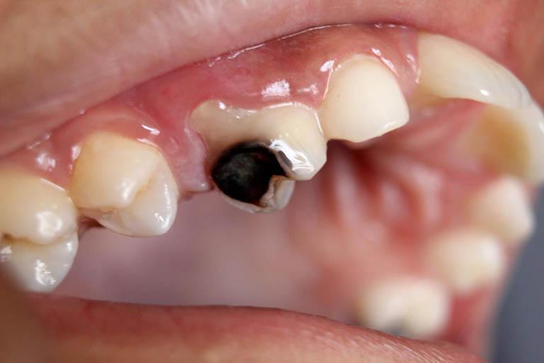 Những nguy hại khi răng sâu bị vỡ, bể, mẻ