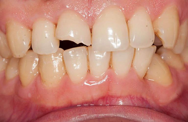 Răng sâu bị vỡ, bể, mẻ nên làm gì? Lời khuyên từ chuyên gia