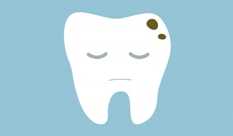 Răng số 8 bị sâu