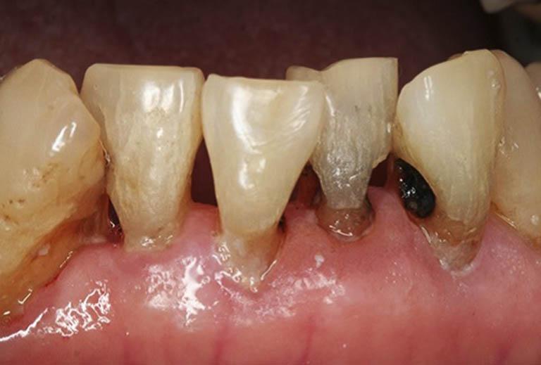 Nguyên nhân dẫn đến sâu chân răng