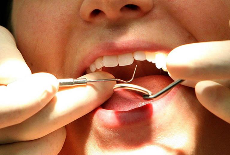 Tái khoáng cho răng