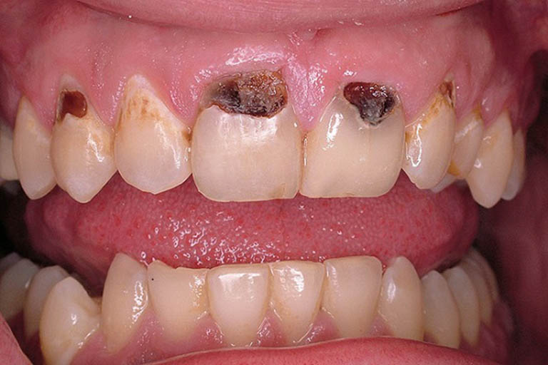 Sâu chân răng: Nguyên nhân, cách điều trị phục hồi hiệu quả