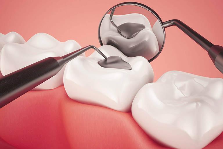 Điều trị tình trạng sau khi hàn răng bị ê buốt tại nha khoa