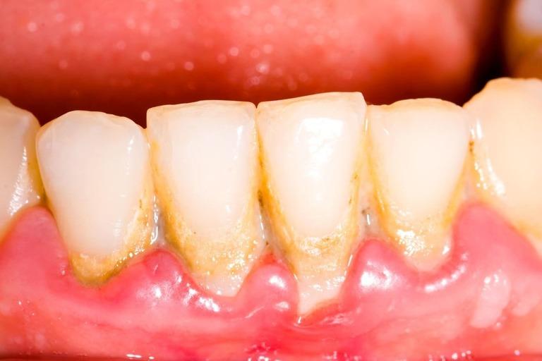 Sâu răng có di truyền không?