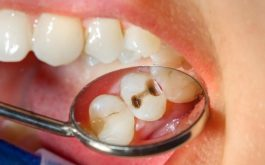 Sâu răng có nguy hiểm không? Có phục hồi được không?