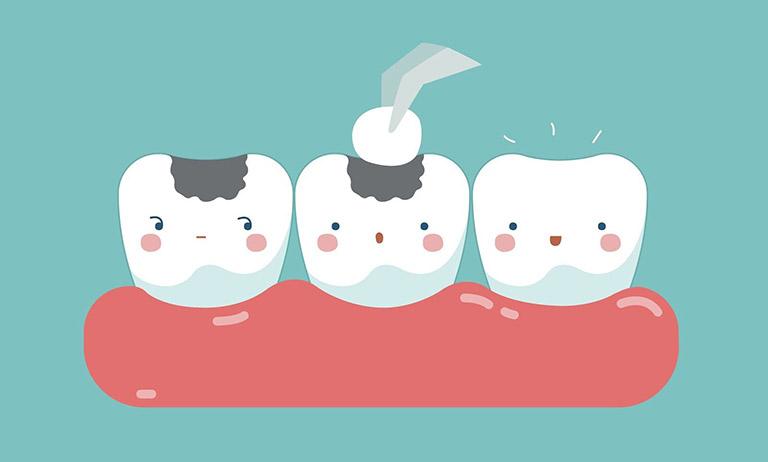 bị sâu răng gây hôi miệng