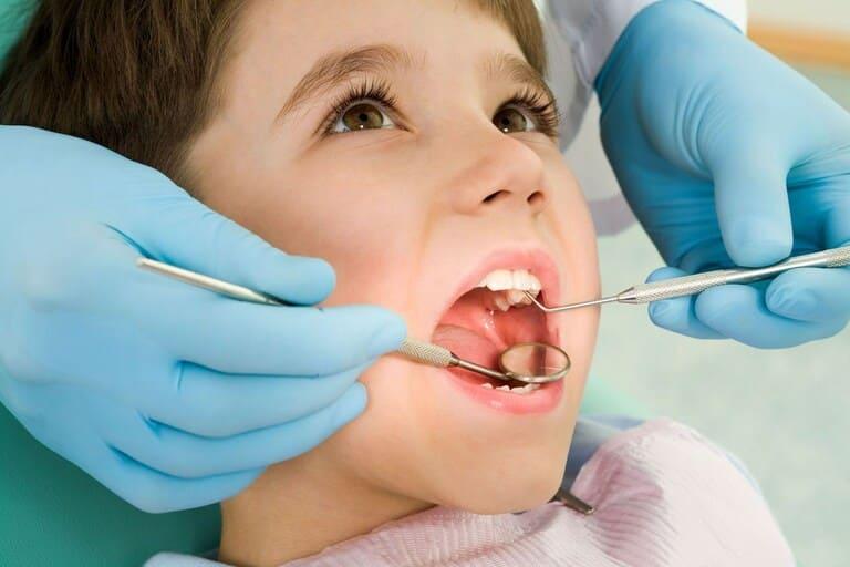 có nên nhổ khi bị sâu răng hàm