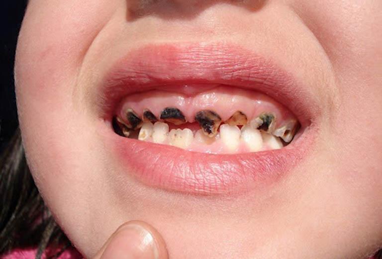 Dấu hiệu nhận biết sâu răng ở trẻ em