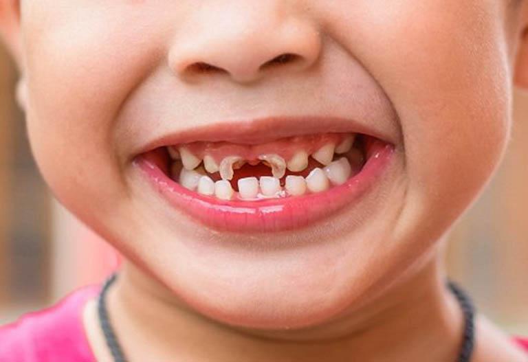 Sâu răng ở trẻ em: Nguyên nhân, cách điều trị và phòng ngừa