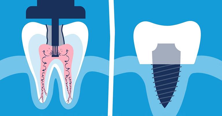 Sâu răng sưng lợi có mủ và đau