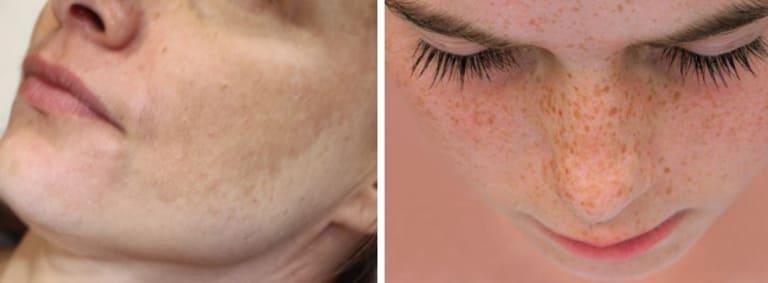 Nám da không giống tàn nhang về bản chất, nguyên nhân và một số đặc điểm nhận diện khác.