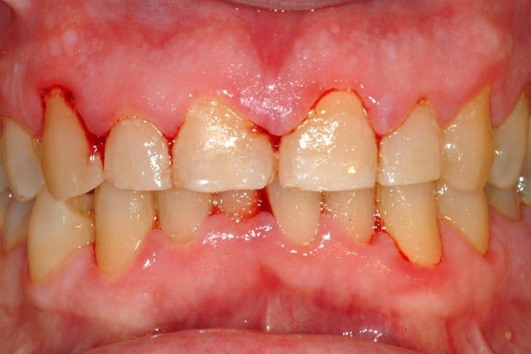 Áp-xe răng ở trẻ em khiến các bé đau đớn, không thể ăn uống bình thường