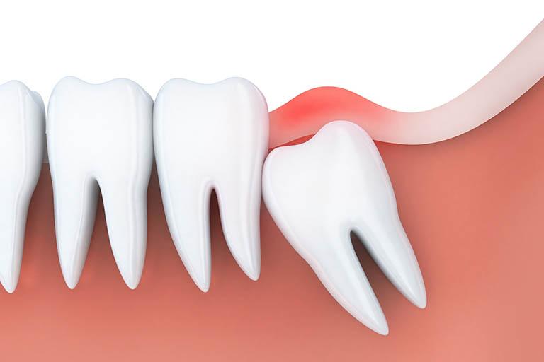 Nguyên nhân gây sưng lợi răng hàm